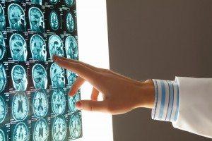 Attorney for a brain injury in Alpharetta, GA